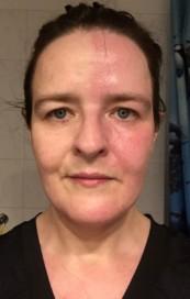 2016 - vor der Atlaskorrektur, mit Harlekin Syndrom