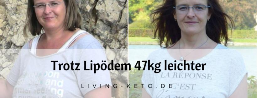 Trotz Lipödem 47kg leichter