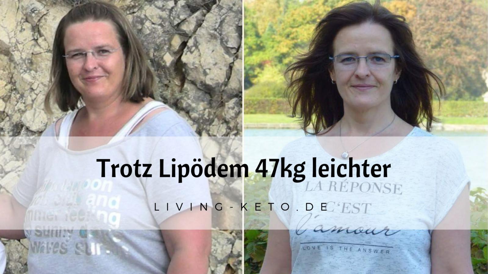 Trotz Lipödem 47 kg leichter